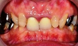 銀歯1.JPGのサムネール画像