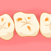 酸蝕歯1.png